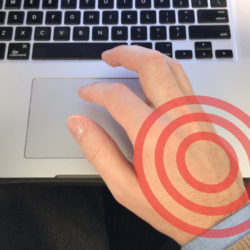 hand pain from trackpad use